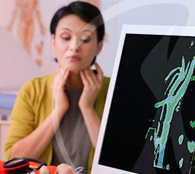 carlos-gama-especialidades-angiologia-doencas-obstrucao-de-carotidas-thumb