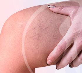 carlos-gama-especialidades-angiologia-doencas-talangectasias-thumb