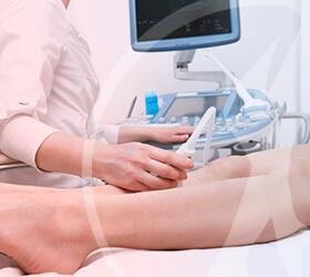 carlos-gama-especialidades-angiologia-exames-doppler-vascular-thumb
