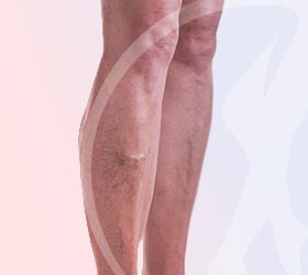 carlos-gama-especialidades-angiologia-doencas-trombose-venosa-thumb