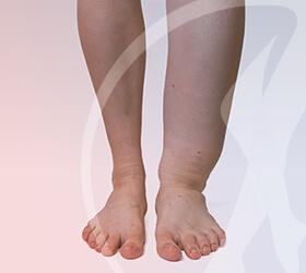 carlos-gama-especialidades-angiologia-doencas-linfedema-thumb
