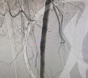 Imagem Angioplastia com implante de Stent em artéria femoral