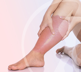 carlos-gama-especialidades-angiologia-doencas-erisipela-thumb