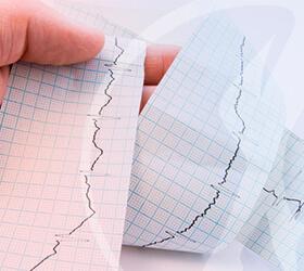 cardiologista-arritmia-thumb