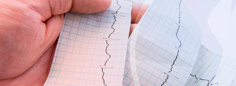 Cardiologia Arritmia cardíaca