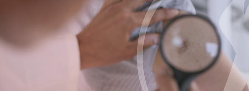Dermatologia Câncer de Pele
