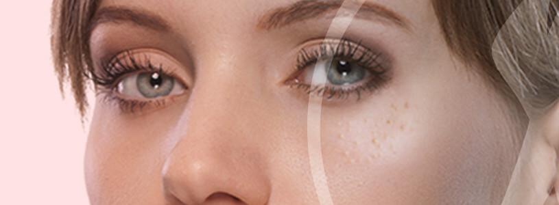 Dermatologia Siringomas