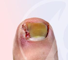 folino-gama-dematologia-cirurgico-unha-thumb