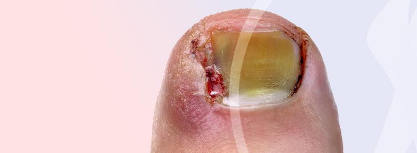 Dermatologia Cirurgia das Unhas