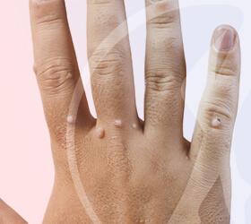 folino-gama-dematologia-cirurgico-verrugas-thumb