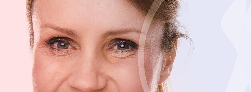 Dermatologia Xantelasma