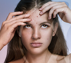 folino-gama-dematologia-clinica-acne-thumb