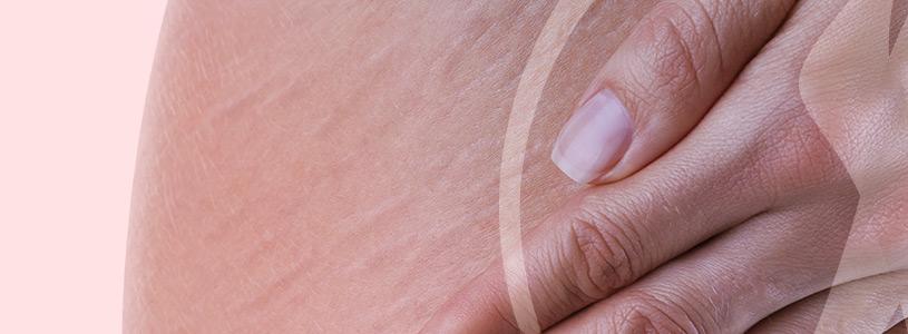 Dermatologia Estrias