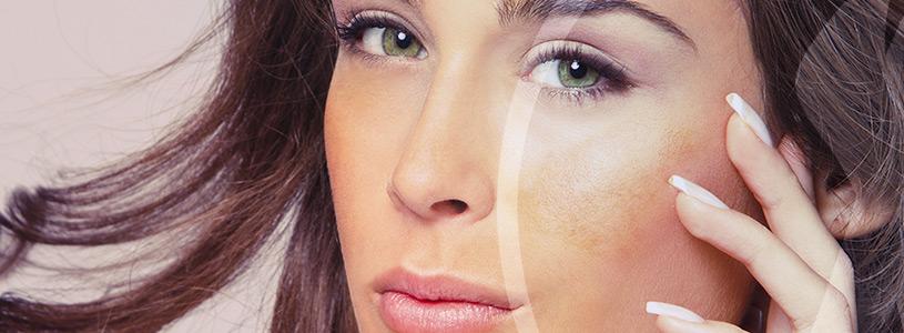 Dermatologia Meslasma