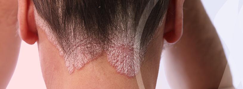 Dermatologia Psoríase