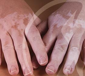 folino-gama-dematologia-clinica-vitiligo-thumb