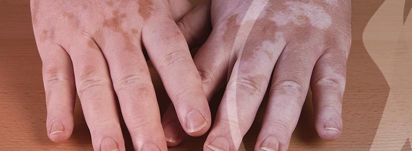 Dermatologia Vitiligo
