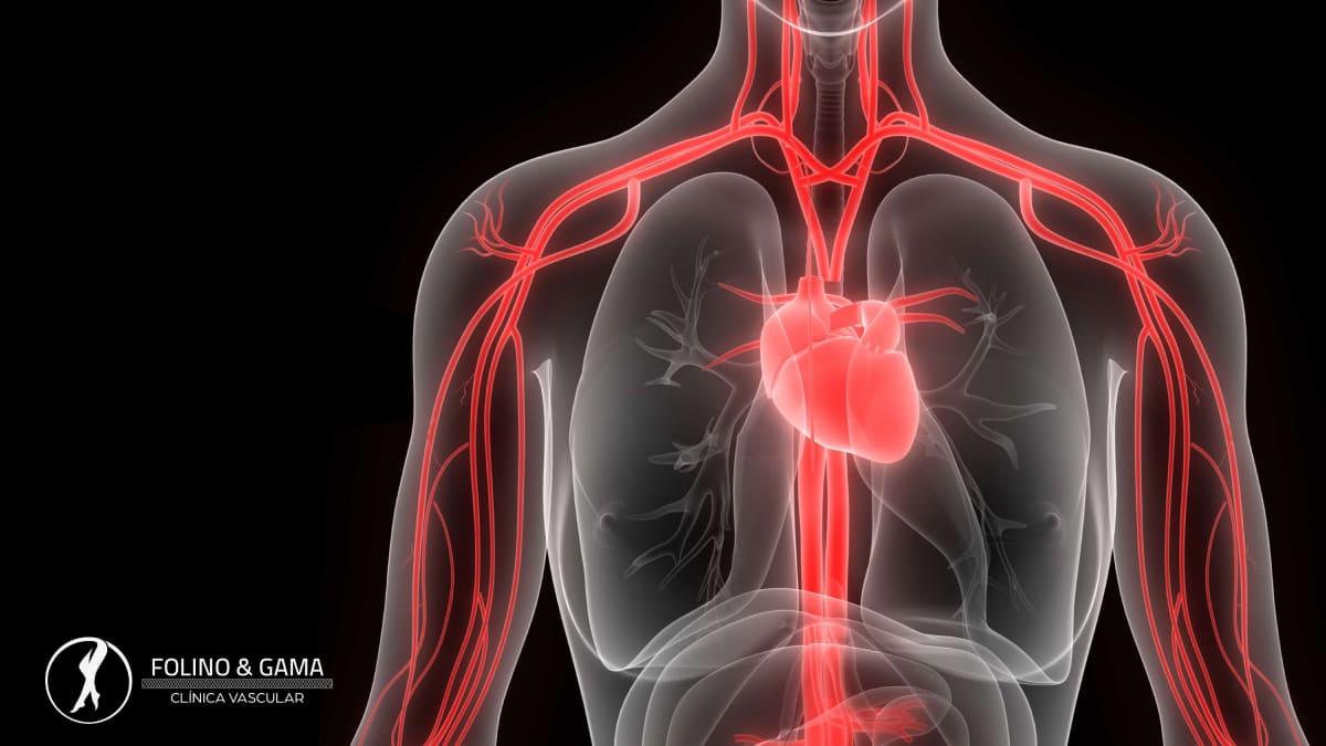 Doenças Vasculares